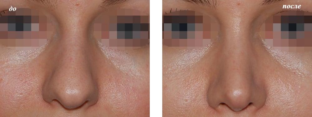 Пластическая хирургия на нос фото
