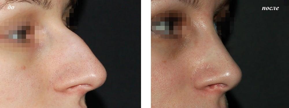 Коррекция носа в архангельска
