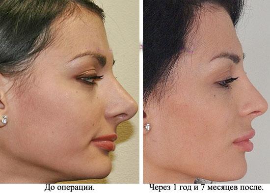 ринопластика до и после фото левин