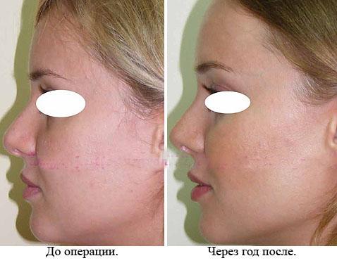 Как изменить кривой нос