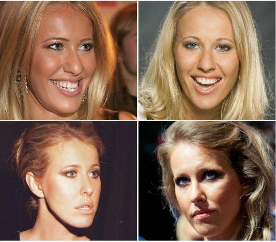 Удачная пластика звезд | фото до и после пластики | журнал.