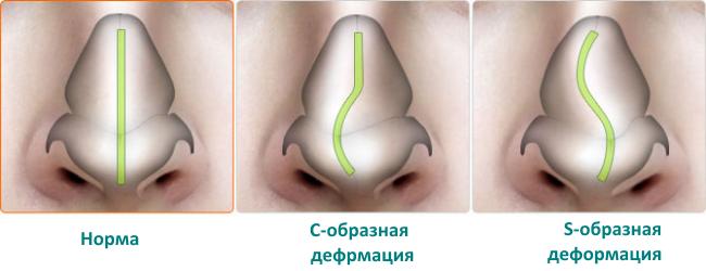 Как лечить искривление носовой перегородкам