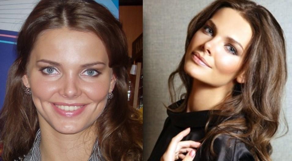 Красивые девушки после пластики фото