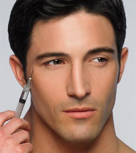 Коррекция горбинки носа гелем