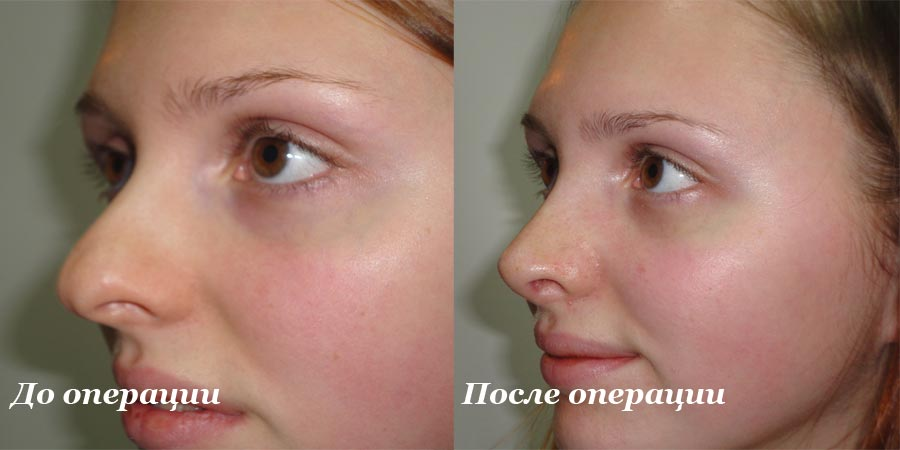 Уменьшить крылья носа без операции