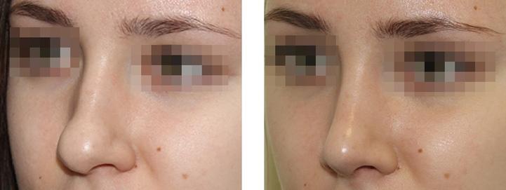 Результат пластической операции для изменения формы лица