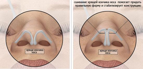 Нос с горбинкой происхождение