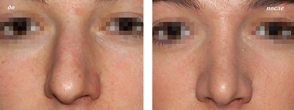 нос после ринопластики