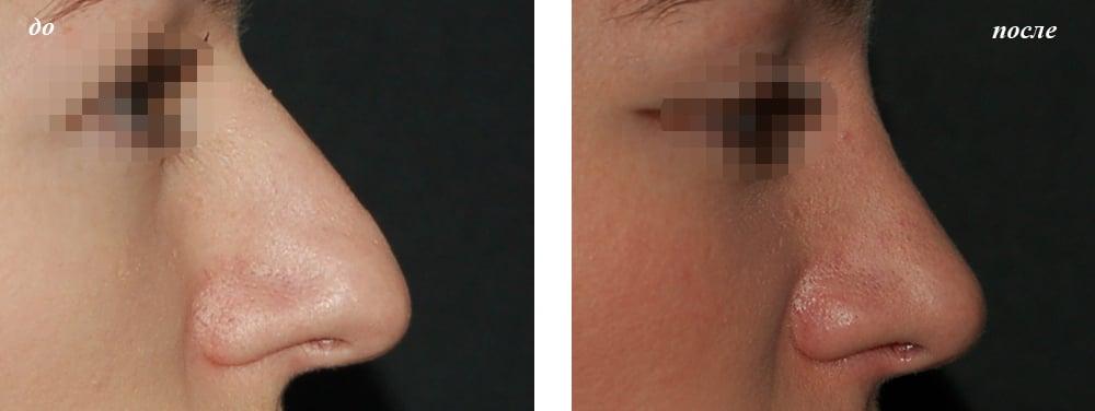 пластика носа ринопластика