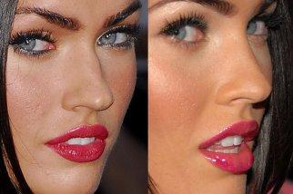 Нос с горбинкой – самая популярная проблема пациенток ринопласта