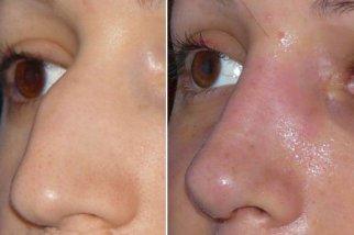 Операция по уменьшению носа