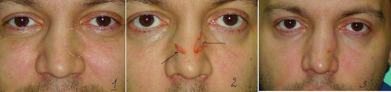 Безоперационная ринопластика носа филлерами