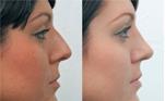 фото Повторная коррекция носа (Вторичная ринопластика)
