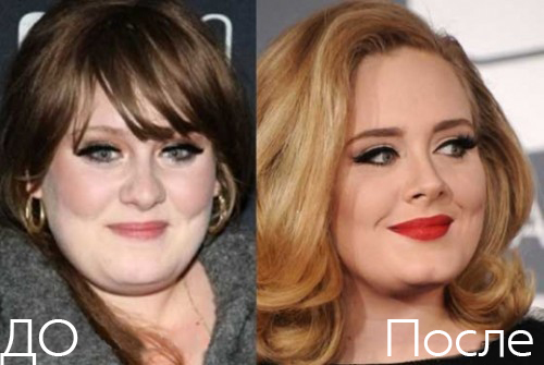 Адель, певица, до и после ринопластики