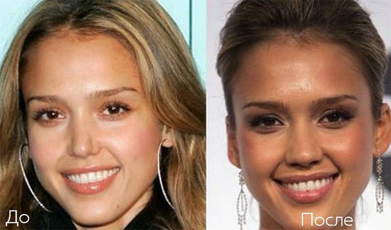 Джесика Альба изменила форму носа