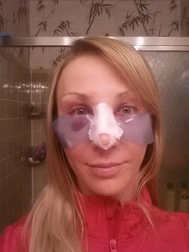 2 дня после пластики носа