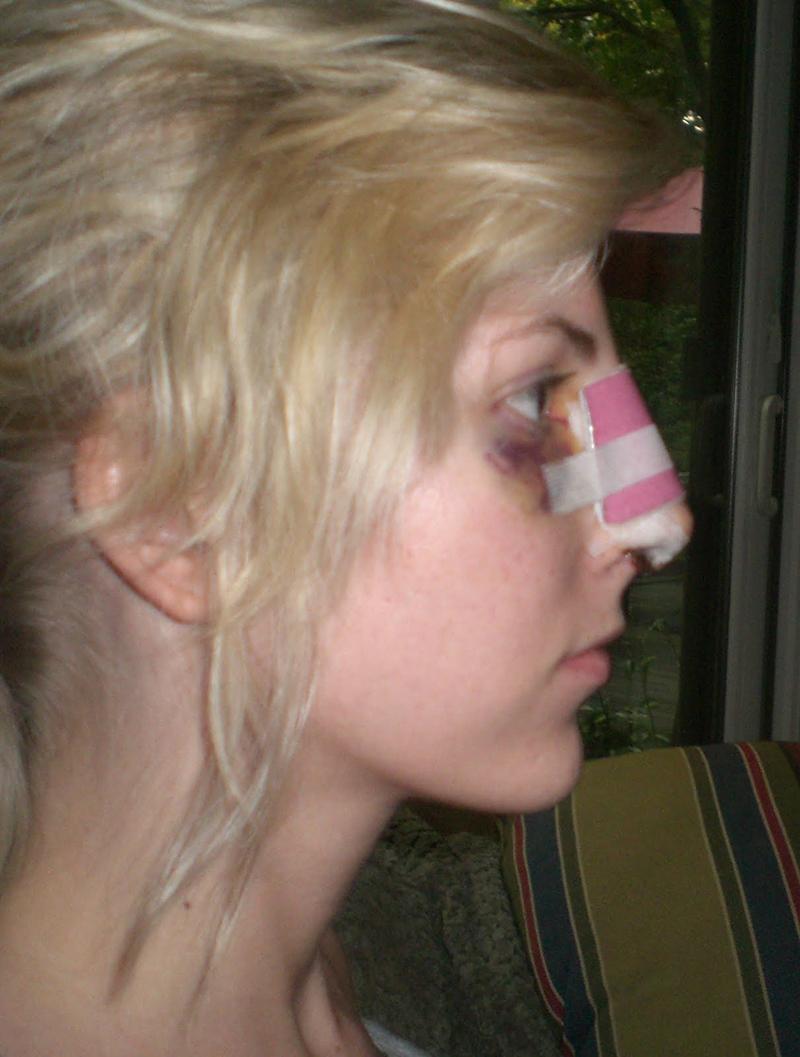 Как выглядит нос на шестой день после ринопластики