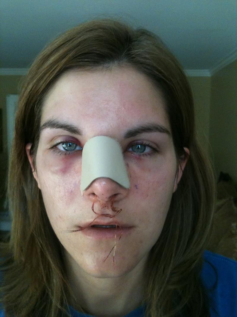 На следующий день после завершения операции на нос