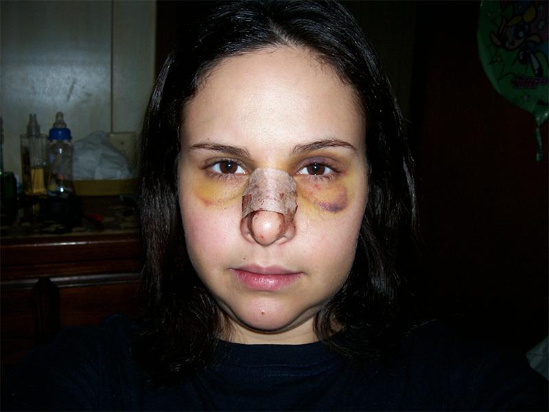 неделя после коррекции формы носа