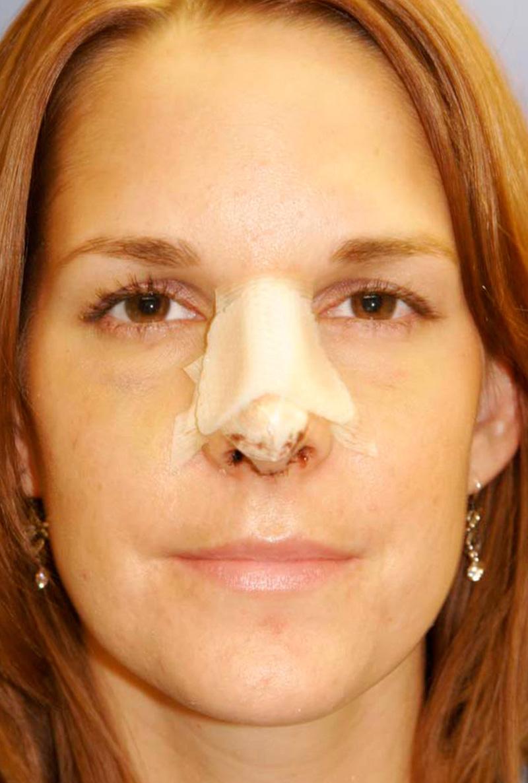 10 дней после операции на нос
