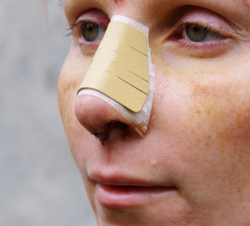 12 дней после операции на нос