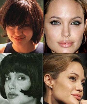Пластика Анджелины Джоли