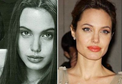 Пластика носа Анжелины Джоли