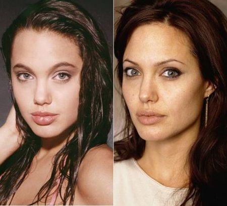 пластика губ Анжелина Джоли