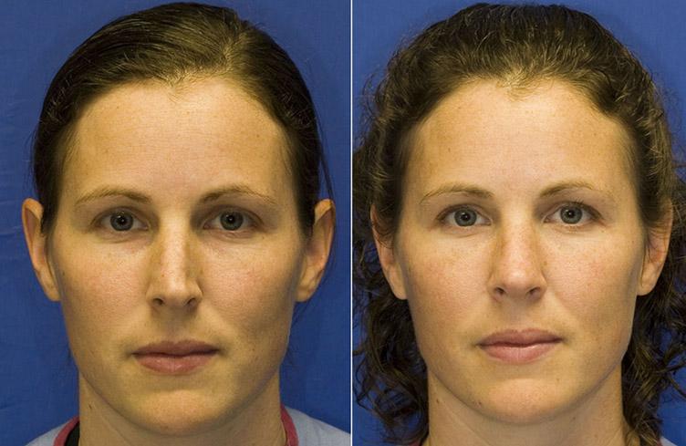 ринопластика маленького носа