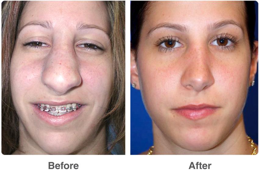 Исправление пропорций носа