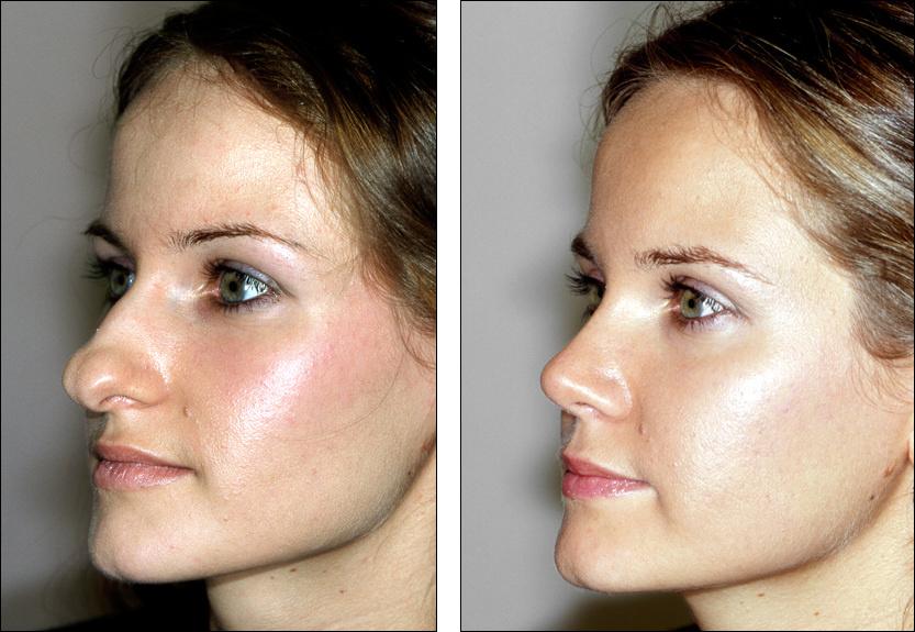 Исправление врожденных дефектов носа