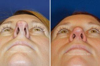 фото Асимметрия кончика носа после ринопластики