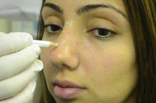 Разметка носа перед операцией