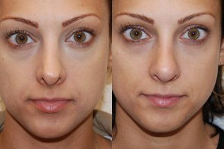 фото до и после операции по увеличению крыльев носа