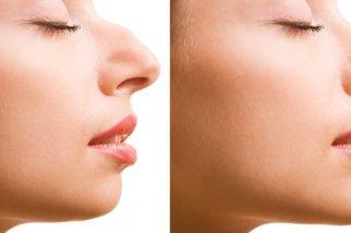 фото Как исправить пропорции носа?
