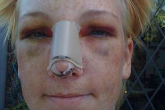 каким бывает оттек после пластики носа