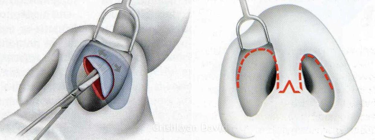 Два типа операции на нос закрытый и открытый