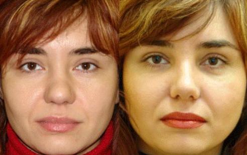 Коррекция крыльев носа фото до и после
