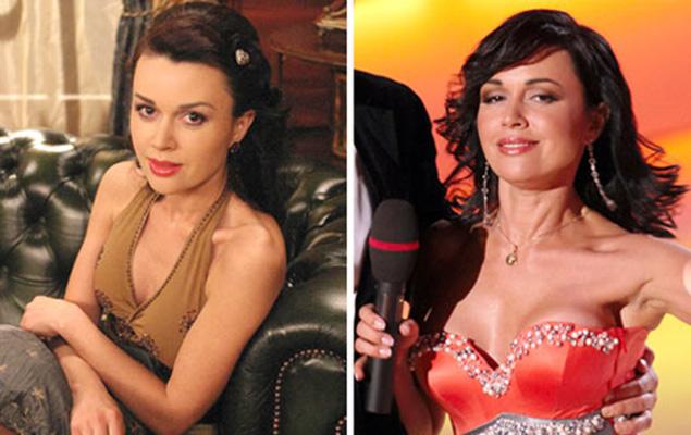 анастасия заворотнюк до и после пластики фото