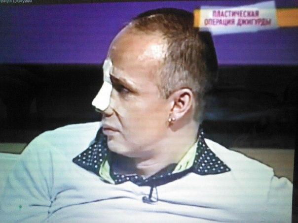Сергей Каплан недоволен хирургами