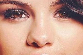 фото Ринопластика носа картошкой