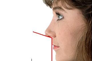 фото Ринопластика курносого носа