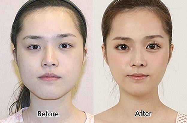 Ринопластика до и после азиатский нос