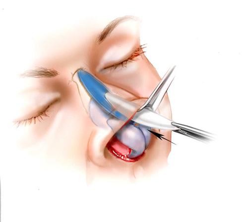 Как внедряют носовой имплант фото