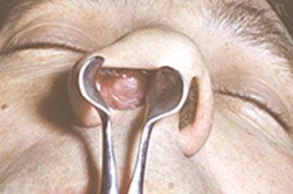 фото Как лечить фурункул носа?