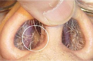 фото Опухоль в носу симптомы,  диагностика и лечение