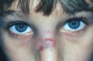 фото Симптомы и лечение травмы носа