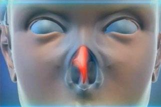 фото Как лечить перфорацию носовой перегородки?