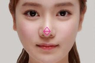фото Ринопластика кончика носа