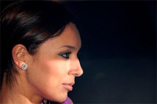 фото Нос с горбинкой – самая популярная проблема пациенток ринопласта
